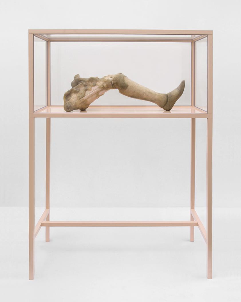 ONANIA / Aetiology Unknown 18 /  2012 / 160 x 50 x 120 cm / prosthesis, fat, leather, cosmetics, polyvinyl acetate, vitrine